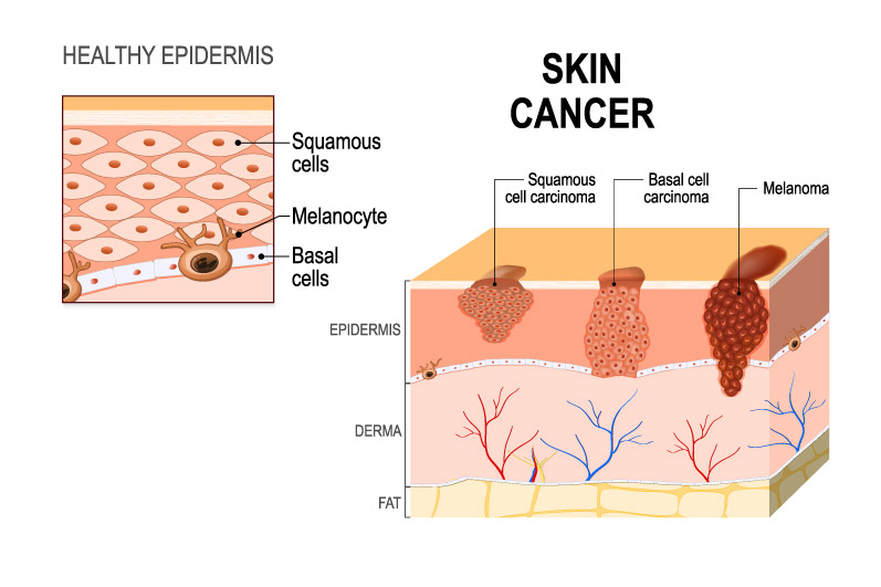 What Is Skin Cancer Signs Symptoms Etc Carecover